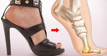 معایب کفش پاشنه بلند, ضررهای کفش پاشنه بلند