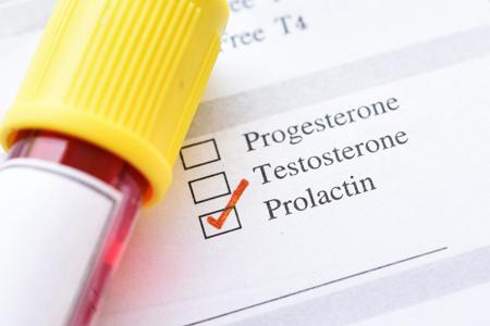 ,ازمایش پرولاکتین,prolactin در آزمایش خون چیست