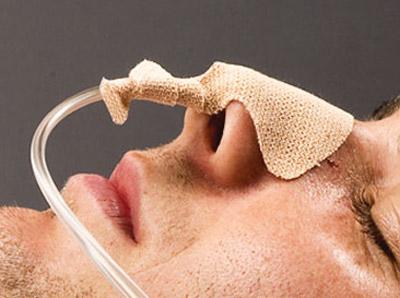 چسبندگی روده یا انسداد روده, درمان انسداد روده