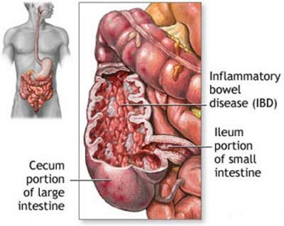درمان انسداد روده, تشخیص انسداد روده