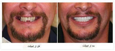 مضرات ایمپلنت دندان, مراقبت از ایمپلنت دندان
