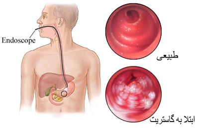 علایم التهاب در معده, بیماری کرون