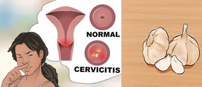 درمان عفونت واژن,روش های درمان درمان عفونت واژن,انواع روش های درمان عفونت واژن