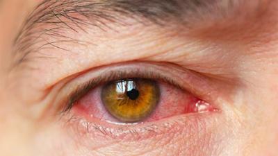 التهاب عنبیه چیست, تشخیص التهاب عنبیه