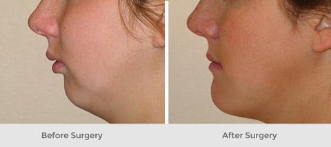 عمل جراحی فک و صورت, عکس عمل جراحی فک