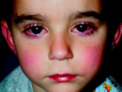 ویروس کاوازاکی, علائم بیماری کاوازاکی