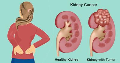 نشانه های سرطان کلیه, علاییم بیماری سرطان کلیه