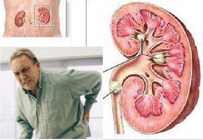 نقرص|داروی گیاهی برای نقرس|بیماری نقرس|