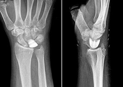 kienbock's disease5 e10 - بیماری کین باخ یا سیاه شدن استخوان مچ دست