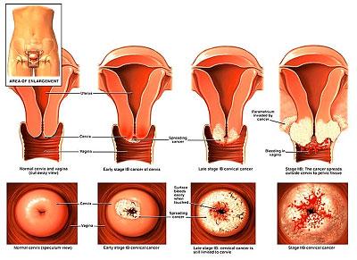 عمل لابیاپلاستی,جراحی واژن,عمل جراحی لابیاپلاستی