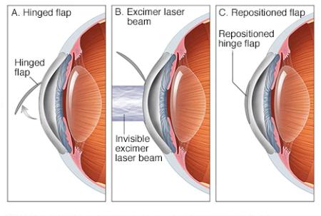 عوارض عمل لیزیک چشم ,عمل لیزیک چشم