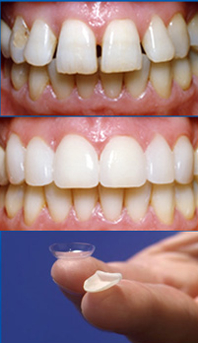 لمینت دندان چیست, معایب لمینت دندان