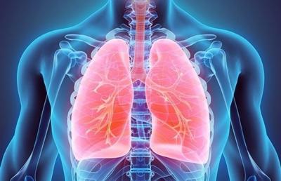درمان سرطان ریه,درمان سرطان ریه