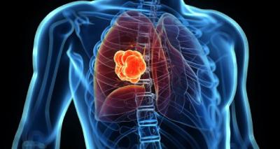 مهمترین علامت سرطان ریه, برای جلوگیری از سرطان ریه