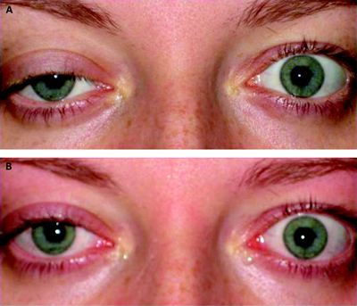 millerfischer syndrome1 1 - سندروم میلرفیشر چیست؟ علائم،علل و درمان سندروم میلر فیشر