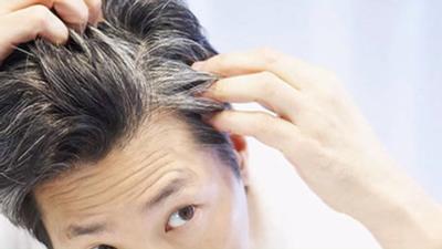 علت سفید شدن مو ,موی سفید