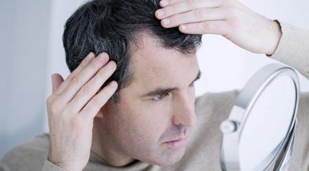 سفیدی مو, علت سفید شدن موی سر