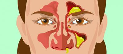 بوی بد مخاط بینی, مخاط بینی چیست