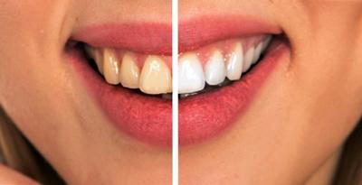 روش درمان پوسيدگي دندان, موادي براي رفع پوسيدگي دندان