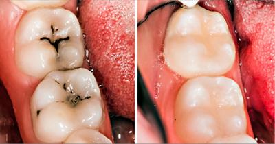 روش درمان پوسیدگی دندان, موادی برای رفع پوسیدگی دندان