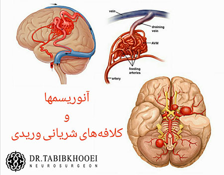 جراحی مغز و اعصاب,جراح مغز و اعصاب در ایران