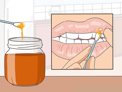 درمان فوری زخم دهان و لثه, درمان برای زخم دهان