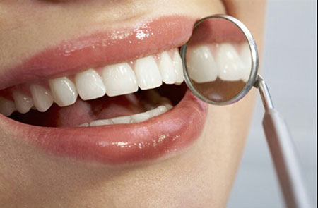کشيدن دندان ها,درمان ارتودنسي,درمان لامينيت