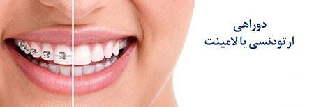لامينت,خنده زيبا,ترميم دندان