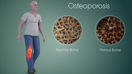 درمان پوکی استخوان,درمان پوکی استخوان با طب سنتی,داروهای گیاهی برای درمان پوکی استخوان