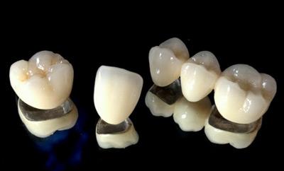 چسب روکش دندان, ساخت روکش دندان