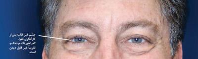 جلوگیری از پیر چشمی, پیر چشمی و درمان آن