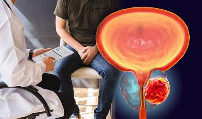 تشخیص سرطان پروستات, علائم سرطان پروستات در مردان