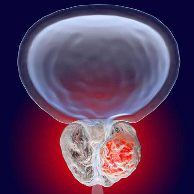درمان سرطان پروستات, پیشگیری از سرطان پروستات