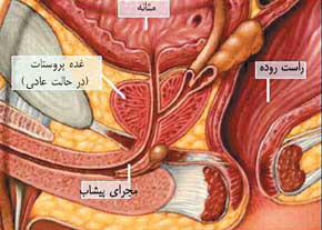 پادتن درمان سرطان پروستات کشف شد