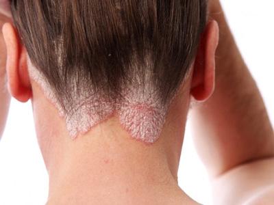 درمان بیماری صدف پوستی, درمان بیماری صدف