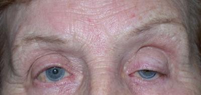 پتوز چشم، درمان پتوز خفیف