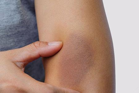 علت کبودی روی پا, علت کبودی بدن بدون ضربه