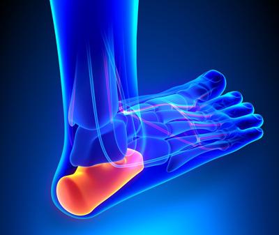 تشخیص و علل درد کف پا, درد کف پا صبحگاهی