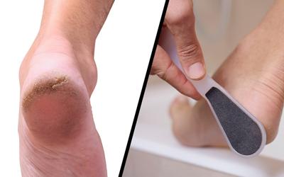 دلیل و درمان درد در پاشنه پا