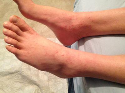 درمان خارش ساق پا, ورم و خارش ساق پا