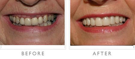زیبایی دندان,متخصص زیبایی دندان