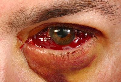 خونریزی شبکیه چشم, بیماری شبکیه چشم