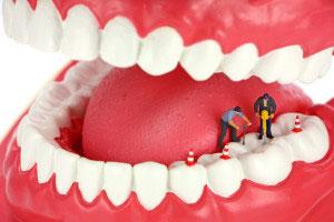 عوارض عصب کشي دندان, نحوه عصب کشي دندان
