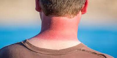راههايی ساده  برای درمان آفتاب سوختگی