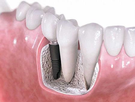 چه کسانی نمی توانند از ایمپلنت دندان استفاده کنند؟