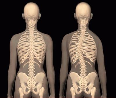 حرکات اصلاحی اسکولیوز, عوارض بیماری اسکولیوز