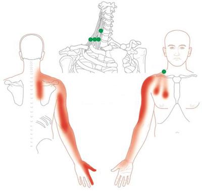درمان سندرم ایمپینجمنت, درمان سندروم گیرافتادگی شانه