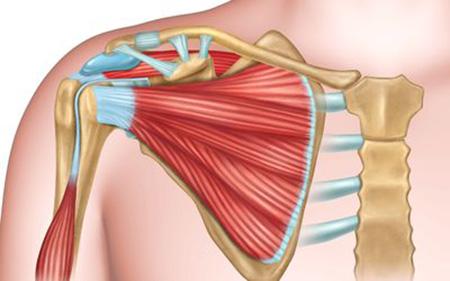 جراحی پارگی تاندون شانه, جراحی کتف و شانه
