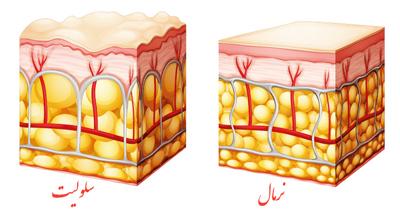 درمان سلولیت پا, ورزش برای رفع سلولیت