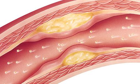 بیماری چربی خون, نشانه های چربی خون